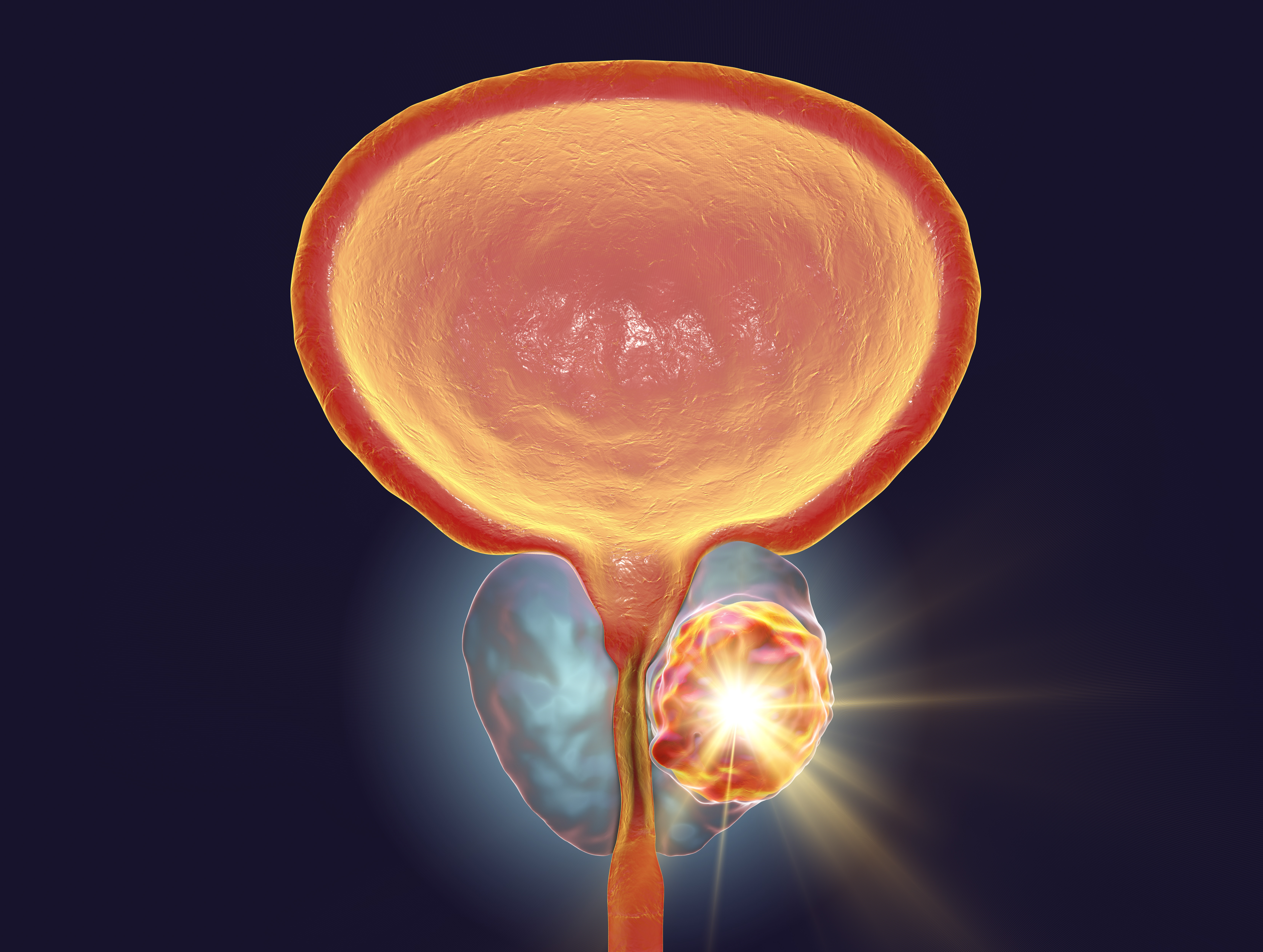 Treatment of prostate cancer, conceptual illustration